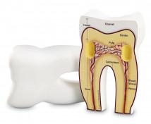 [Zub - pěnový model]