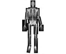[Rentgenowskie zdjęcia ludzkiego szkieletu]