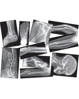 Rontgenové snímky zlomených kostí